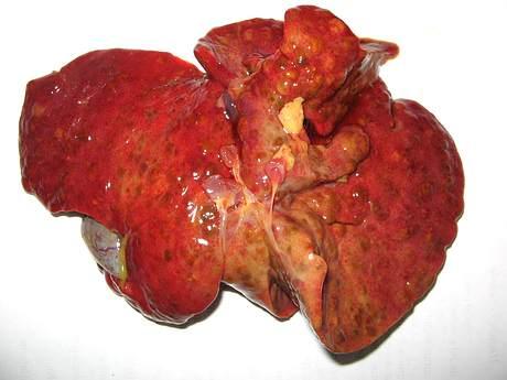 Foto 1 - Hígado cirrótico.