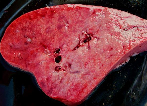 Figura 3: Corte sagital pulmonar: Nodulaciones grisáceo marmóreas coalescentes difusas en la porción ventral del lóbulo diafragmático.