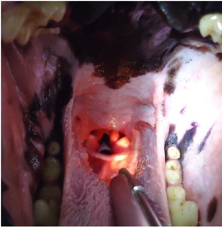 Fig. 5 b - Control dos meses y medio desde el primer procedimiento. Prótesis colocada luego de su limpieza.