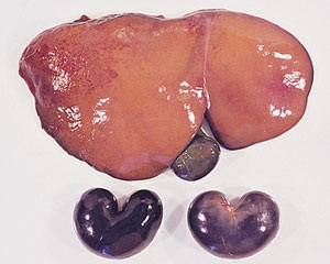 Fig 1. Intoxicación por cobre. Hígado de color anaranjado y riñones de color oscuro.