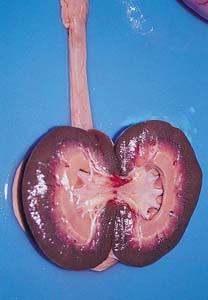 . 4. Intoxicación por Jara. Dilatación de la pelvis renal.