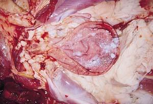 Fig. 8. Urolitiasis. Cálculos de pequeño tamaño (arenilla) en la vejiga urinaria.