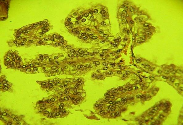 Figura 5: Proliferación papilar del epitelio alveolar. 40x HE.