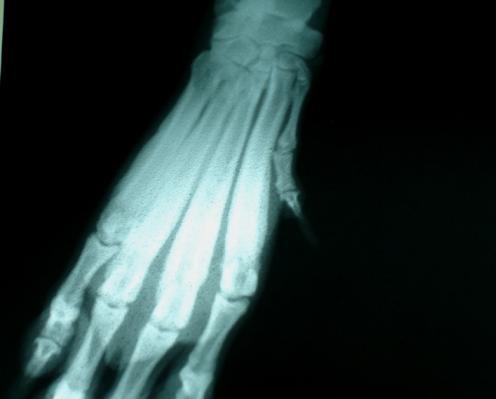 Osteopatía: Proliferación perióstica diafisaria.