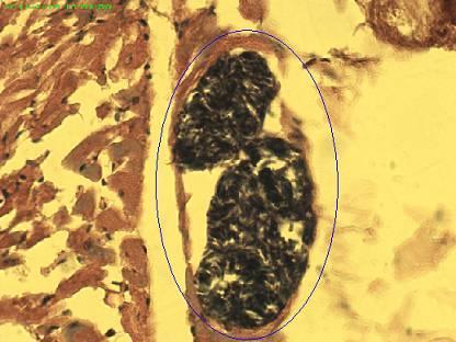 Figura 2. Formaciones quisticas ovoides en músculos