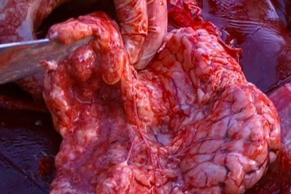 Foto 1. Cerebro (N2), corte transversal del hemisferio derecho. Severo reblandecimiento (malacia), cavitación y licuefacción focal extensiva de la sustancia blanca cerebrocortical y periventricular.