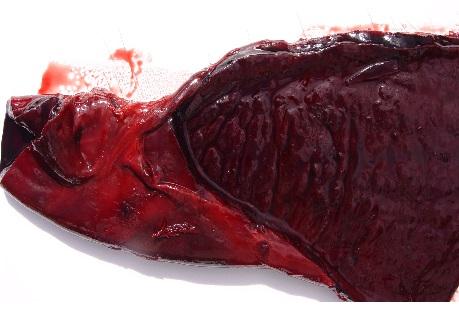 Figura 2: Corte de intestino delgado, donde puede observarse el estado hemorrágico de la mucosa y de la serosa como así también el espesor aumentado de la pared intestinal.