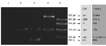 Figura 5: Electroforesis en gel de agarosa de los productos de amplificación de la PCR múltiple. Calles: 1, control negativo; 2, C. perfringens aislado de hígado del presente caso; 3, C. perfringens tipo C; 4, C. perfringens tipo D; 5, C. perfringens tipo E cpe+ cpb2 +, pb: pares de bases.