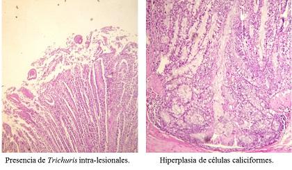 Foto 2: Histopatología de ciego y colon.