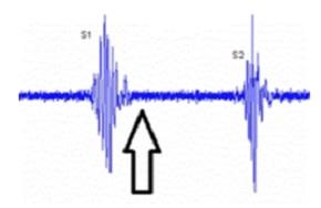 Localización de un soplo sistólico precoz