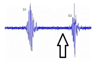 Localización de un soplo sistólico tardío