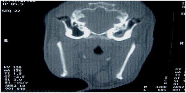Fig.7: Tomografía computada de conejo con síndrome vestibular periférico del lado izquierdo. Se puede observar el área de híper densidad en la bulla timpánica izquierda. Instituto Neurológico Veterinario de Chile