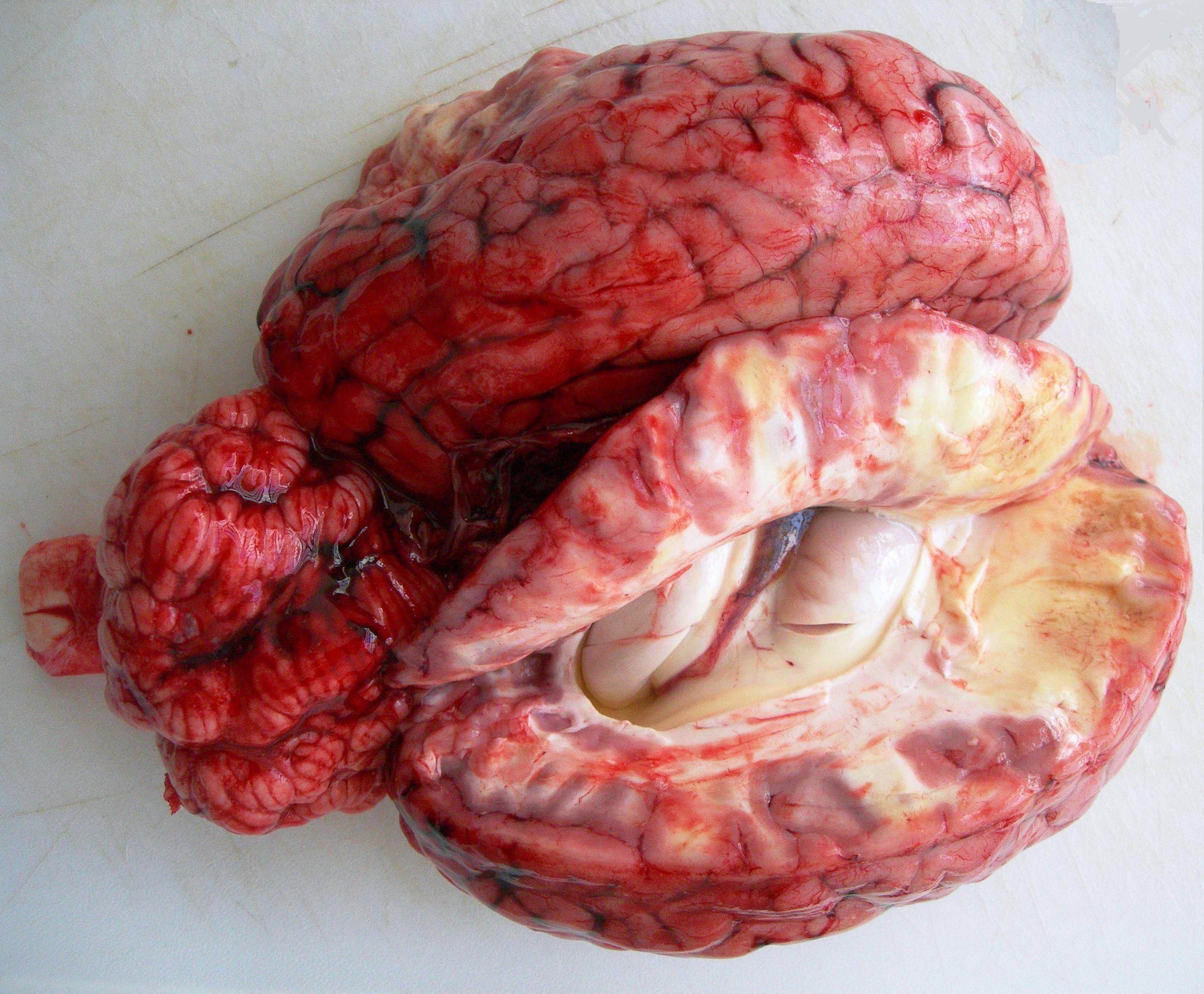 Foto 1: Cerebro y cerebelo con presencia de congestión y hemorragias meníngeas. Se aprecia en la región frontal del hemisferio derecho una zona de malacia que afecta a la sustancia blanca.
