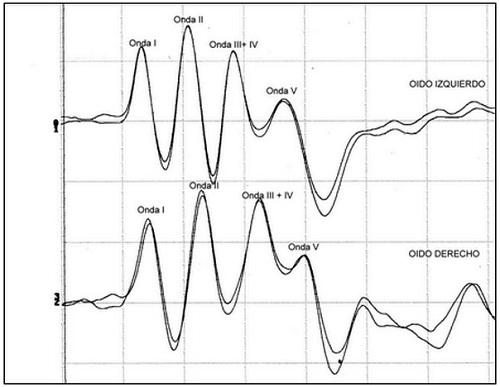 Figura 3: Registro obtenido a partir de un cachorro de raza Dogo argentino de 2 ½ meses, macho, con audición normal. En este caso, las ondas III y IV se encuentran fusionadas en una onda única