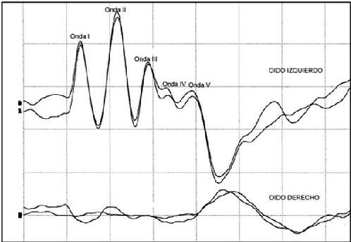 Figura 4: Registro obtenido a partir de un cachorro de raza Dogo argentino de 2 ½ meses, hembra, con sordera unilateral. En este caso, se pueden reconocer individualmente las ondas III y IV en el oído sano.