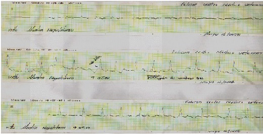 Figura 2: Electrocardiograma en derivada bipolares de un paciente canino que ingreso a revisión cardsión cardr presentar disnea espiratoria, mucosas pálidas y debilidad de 8 días de evolución. Diagnóstico cardiomiopatía dilatada. Presenta una frecuencia cardiaca por electrocardiograma que oscila entre 150 y 200 latidos por minuto. Observe las ondas delta y mayor duración de la onda R (haz de Kent).