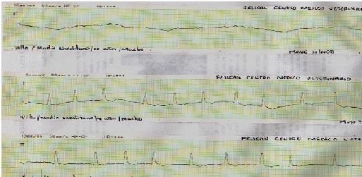 Figura 3: Electrrocardiograma en derivada es del mismo paciente 15 días después. Donde presenta una frecuencia cardiaca por electrocardiograma que oscila120 y 150 latidos por minuto. Además se aprecia fibrilación atrial. (Arritmia supraventricular).