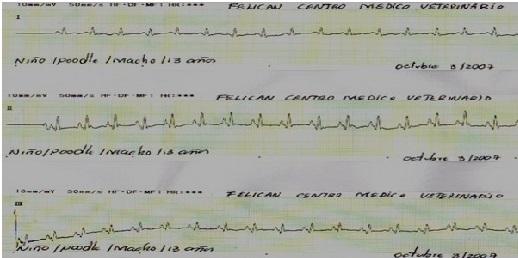 Figura 4: Electrocardiograma en derivadas bipolares de un paciente canino que ingresa a revisión cardiológica por presentar una tos paroxística y debilidad episódica de 3 meses de evolución. Síndrome Long Ganong Levine con frecuencia que oscila 250 300 latidos por minuto, observe Intervalo P-R corto (Haz De James).