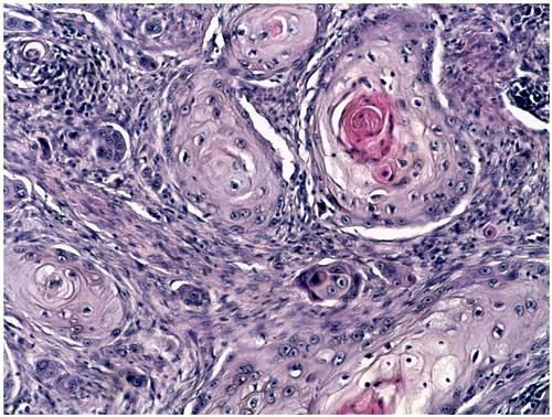 • Figura Nº 3: Cambios histopatológicos: (histopathologic changes). Presencia en dermis de islotes de epitelio escamoso con disqueratosis central (cebolletas corneas) características del carcinoma de células escamosas.