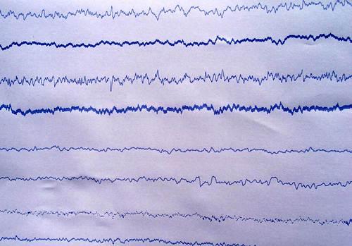 • FiguraNº6: Electroencefalograma post tratamiento (electroencephalography): No se observan alteraciones luego del tratamiento con 5 FU. Método utilizado con referencia CZ y electrodos aguja.