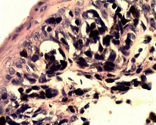 FOTO 1: Epitelio Superficial con infiltrado celular melanocitico. H/E 40x